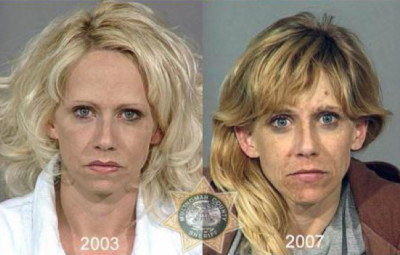 Before-And-After-Drugs-3